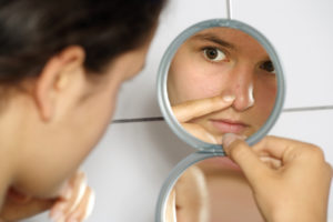 acne treatments with exposed skin care